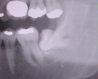 横向き親知らずが痛い抜歯後も仕事できるか昼休み歯医者にいってみた